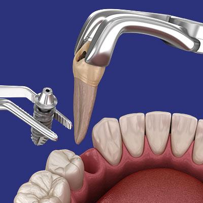 השתלות שיניים אשקלון