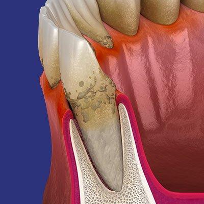פריודונטיה - בריאות הפה - אשקלון