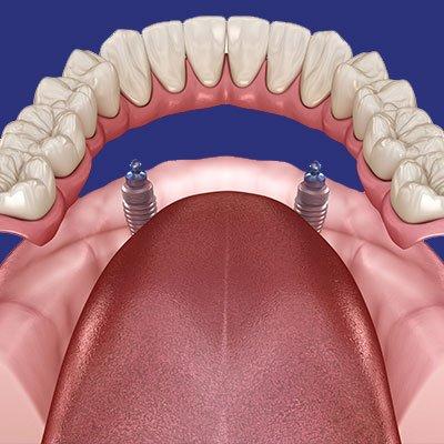 שיניים תותבות - מרפאת שיניים - אשקלון