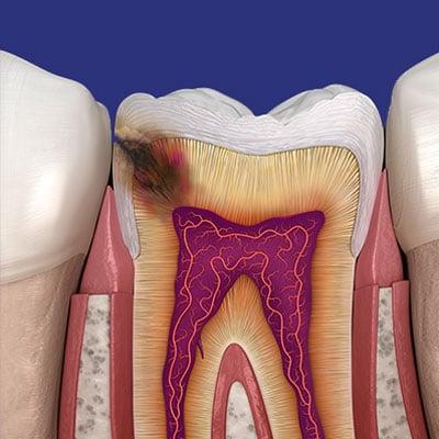 סתימות בשיניים אשקלון- שחזורים - מרפאת שיניים באשקלון